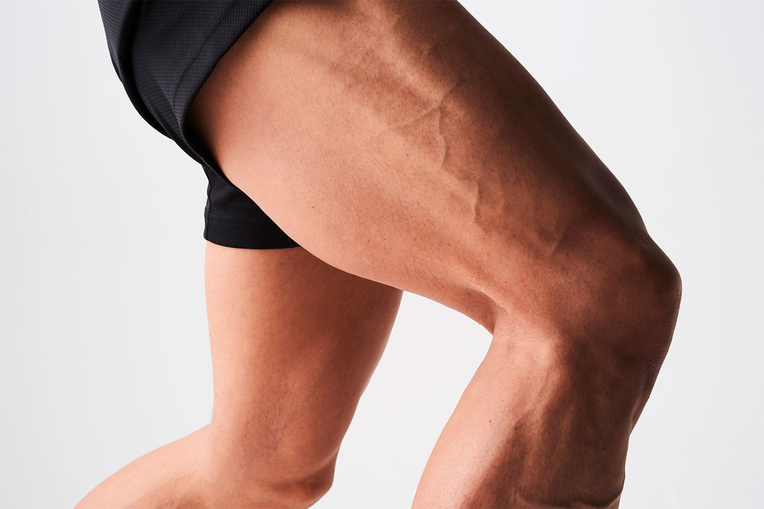 有馬康泰さんの大腿四頭筋