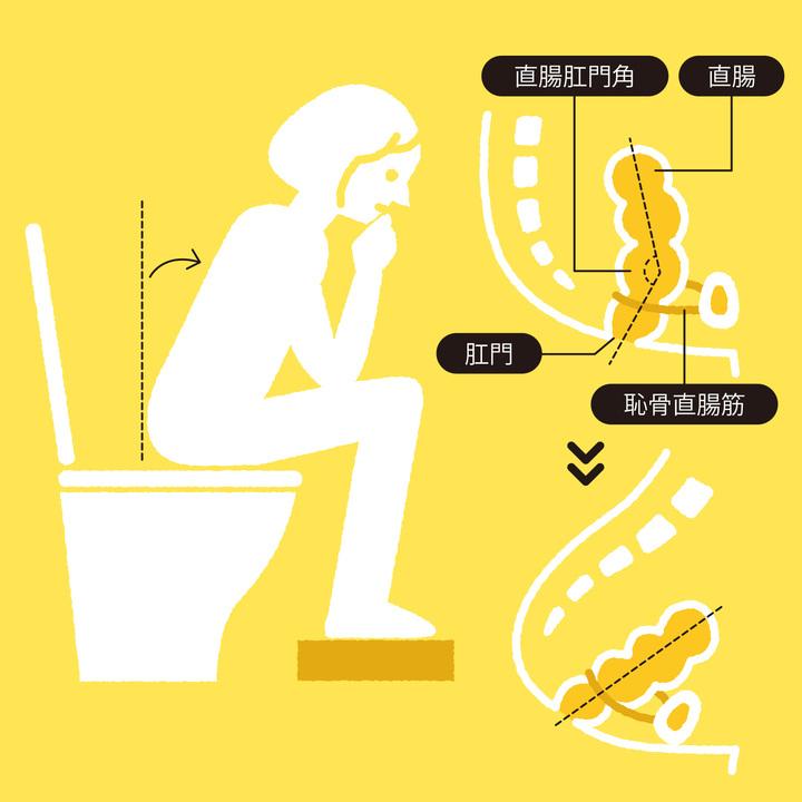 排便姿勢で大切なのは、 直腸肛門角の調整。