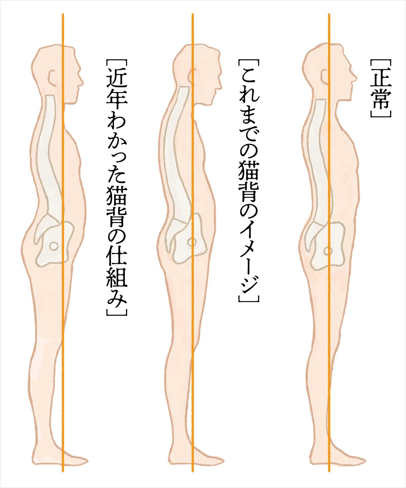 知っていますか? 骨盤の傾きと猫背の関係。