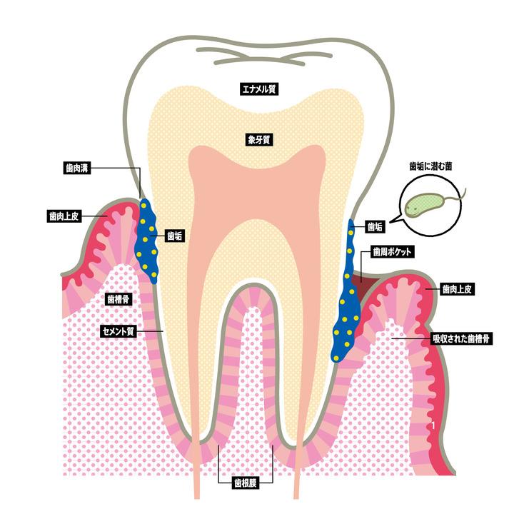 歯の健康な人も歯と歯肉の境目には歯肉溝を持つ。